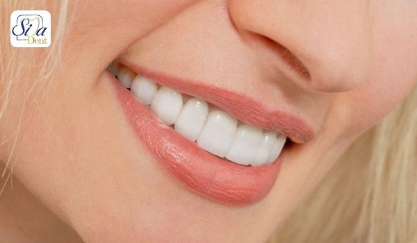 فرق ارتودنسی و لمینت دندان