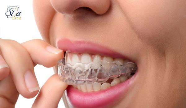 تفاوت هزینه ارتودنسی و لمینت دندان
