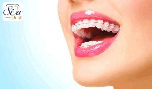 جلوزدگی دندان ها