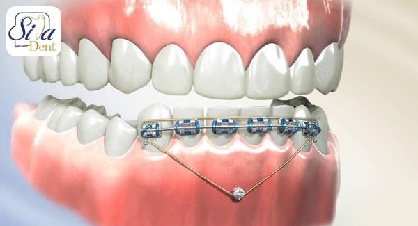 آیا دیپ بایت برای دندان ها بد است