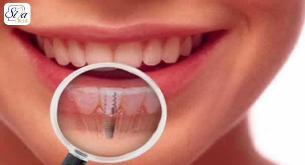 ایمپلنت دندان جلو چیست