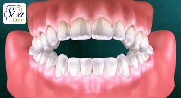 حالت استاندارد دندان ها