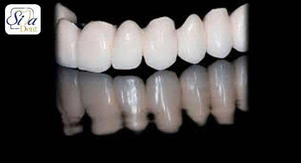 پروتز کامل دندان