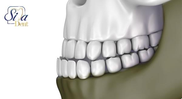 درمان جلوزدگی دندان های پایین