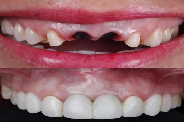 ترمیم دندان های پوسیده در اصلاح طرح لبخند
