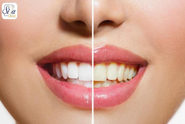سفید کردن دندان ها در اصلاح طرح لبخند