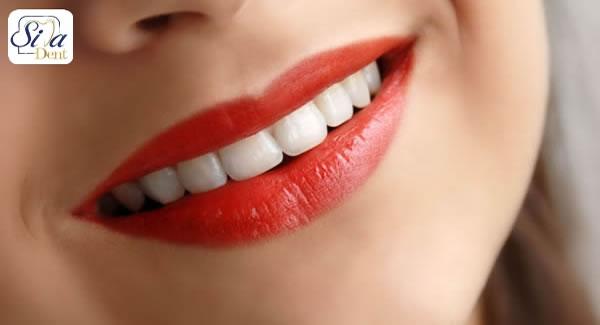 عوارض اصلاح طرح لبخند