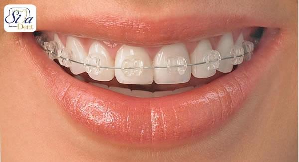 عوارض درمان ارتودنسی در اصلاح طرح لبخند