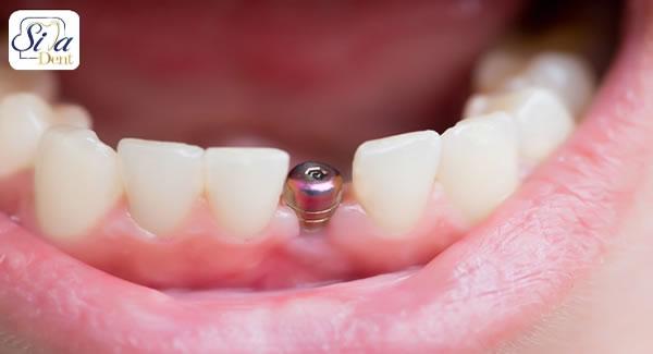 عوارض روش بیلیچنگ در اصلاح طرح لبخند