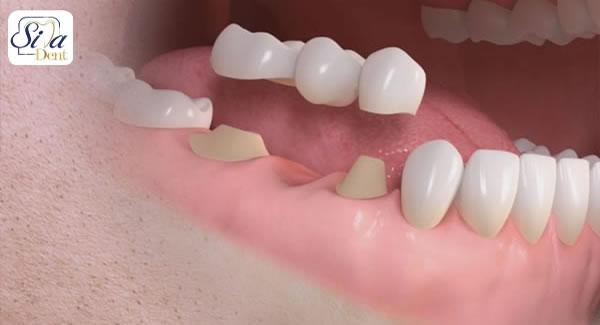توصیه های مهم پس از کاشت دندان