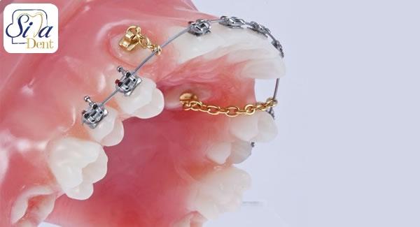 دندان نیش نهفته چیست؟