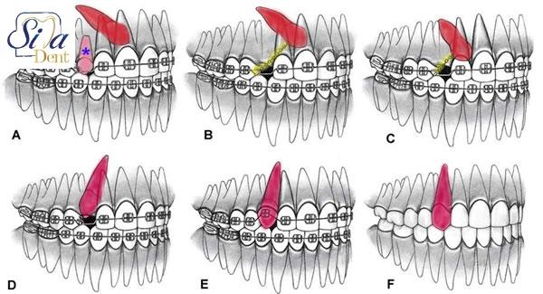 روش های درمان نهفتگی دندان