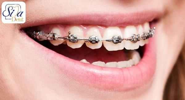 عوارض دارا بودن دندان نیش نهفته