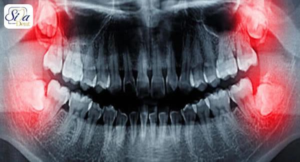 دانستنی های بعد از کشیدن دندان عقل