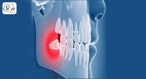 دانستنی های پس از کشیدن دندان عقل