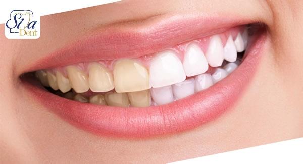 مواد غذایی مفید برای سلامت دندان ها
