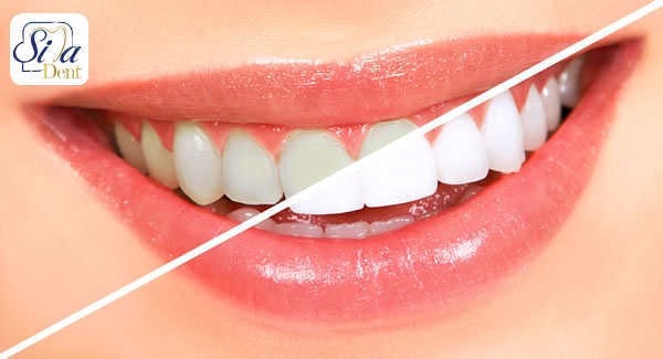 تغذیه و سلامت دندان