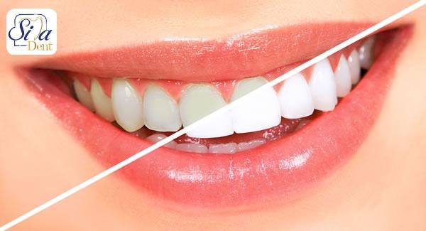 غذاهای دارای فسفر و کلسیم برای سلامت دندان ها