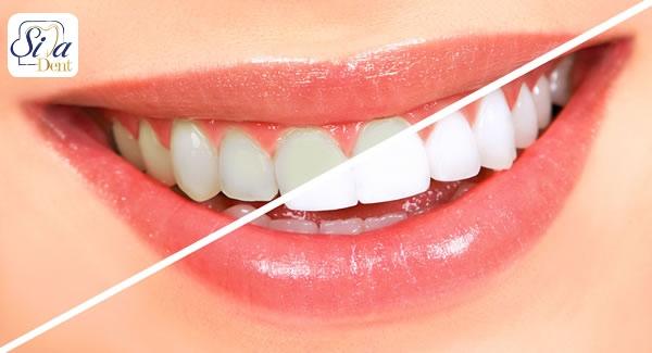 مواد غذایی مفید برای حفظ سلامت دندان