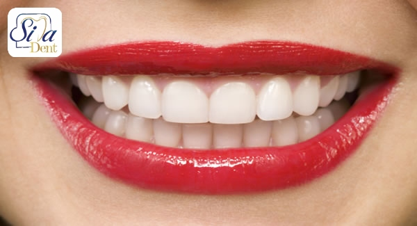 تاثیر کاشت دندان در اصلاح طرح لبخند