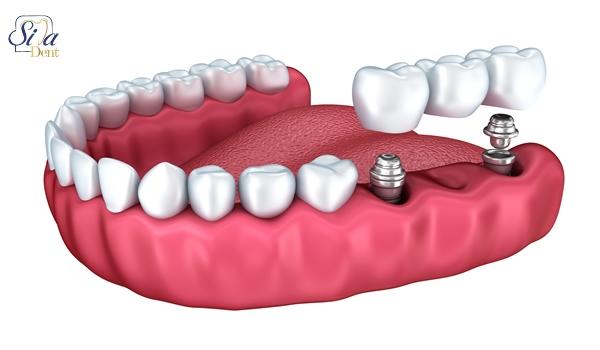 تفاوت ایمپلنت و بریج دندان