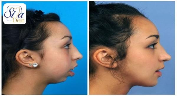 جراحی فک و زیبایی چهره