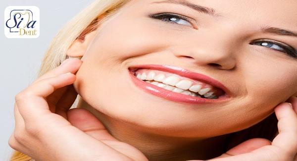 فواید اصلاح طرح لبخند چیست؟
