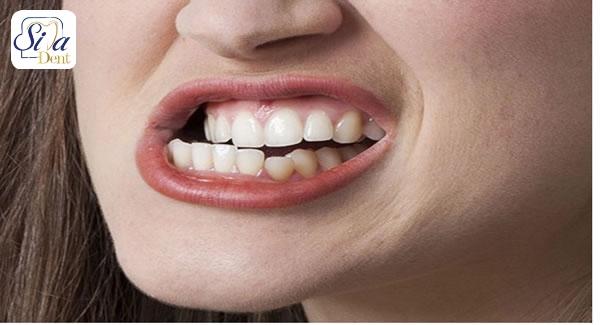 دندان قروچه و آسیب دندان
