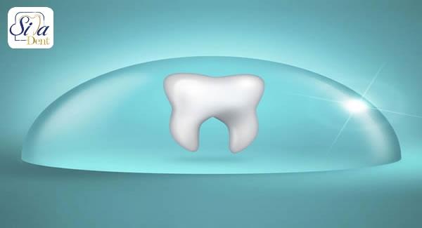 دلایل آسیب دندان