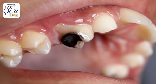 سرطان دهان و آسیب به دندان ها