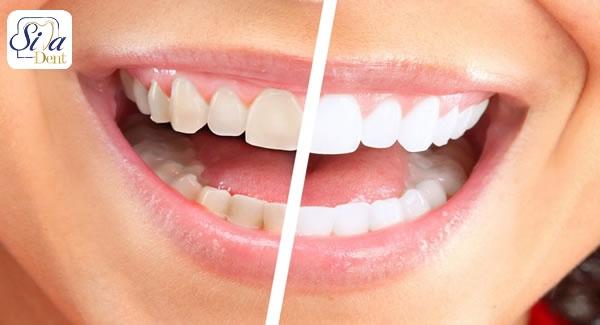 مضرات لمینت برای مینای دندان