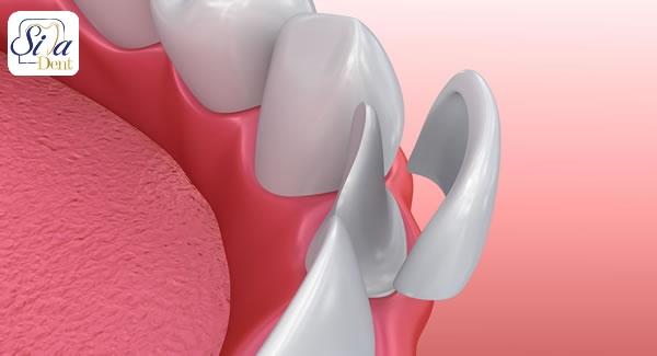 لمینت دندان و معایب آن