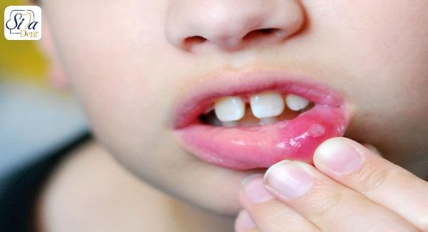 علل ایجاد آفت دهان