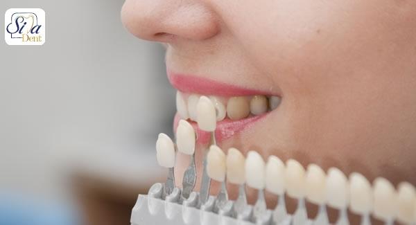 معرفی انواع روکش دندان
