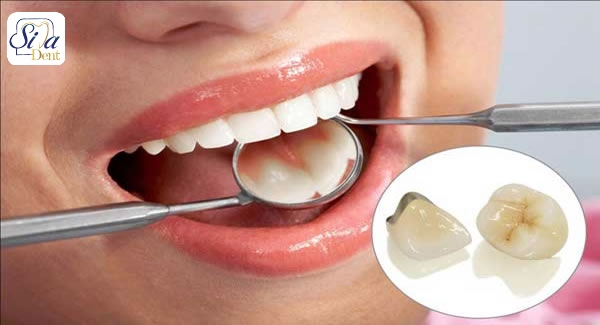 مزیت های روکش دندان سرامیکی فلزی