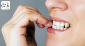 عادت های بدی که باعث خرابی دندان ها می شوند