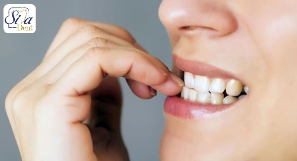 عادت هایی که باعث خرابی دندان می شوند
