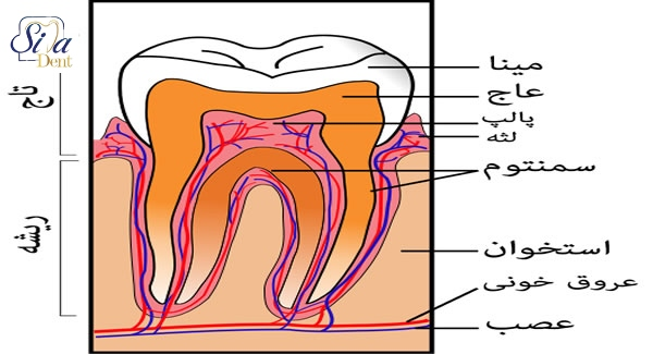 عواملی که باعث آسیب به مینای دندان می شوند