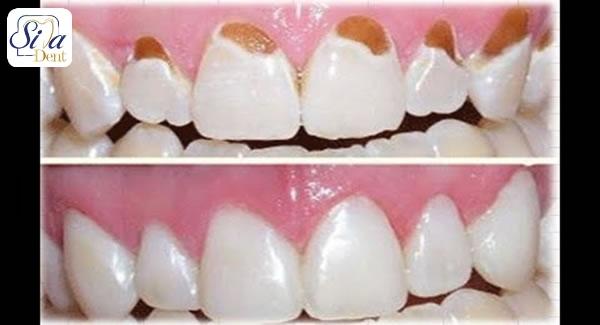 علل آسیب به مینای دندان