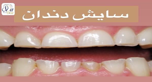 دندان قروچه, دندان قروچه