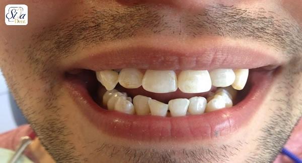 لمینت برای دندان های کج