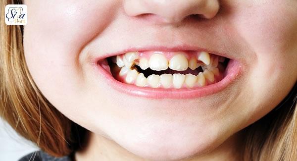 بررسی مزیت لمینت برای دندان های کج