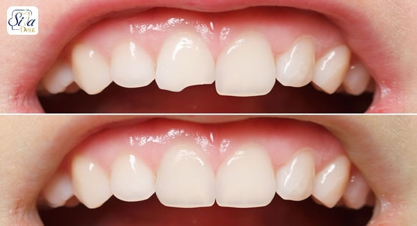 can porcelain veneers fix crooked teeth