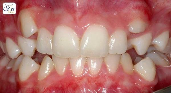 آیا لمینت دندان برای دندان های کج قابل اجرا است؟