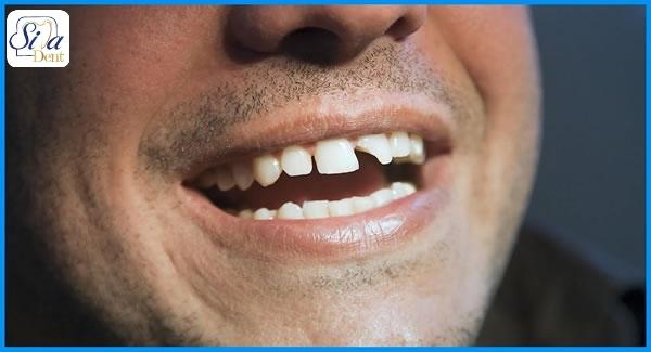 ترمیم دندان شکسته با روکش