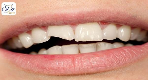 روش های ترمیم دندان شکسته