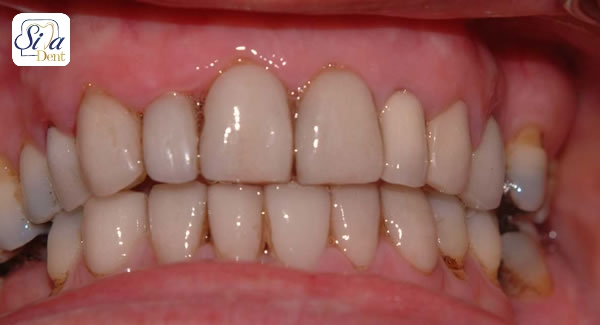 coffee stain teeth laminate
