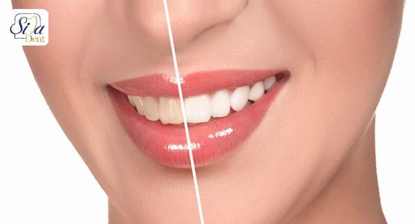 تاثیر قهوه بر زرد شدن لمینت دندان