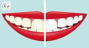 تاثیر قهوه بر تغییر رنگ دندان ها