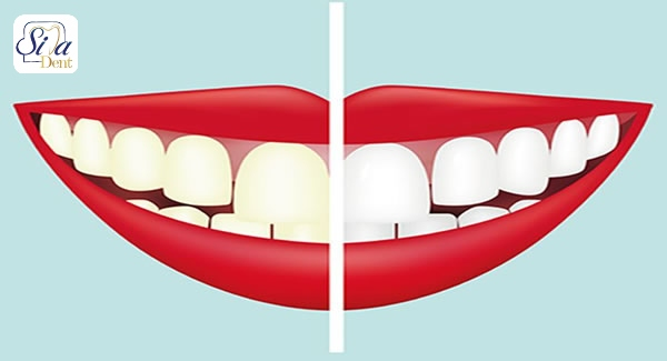 اثر قهوه بر تغییر رنگ لمینت دندان